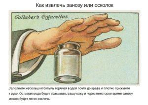 Как вытащить металлическую занозу из пальца